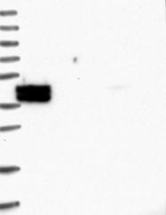 NBP1-82717 - Sestrin-3 (SESN3)