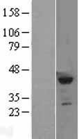 NBL1-15870 - SETD8 Lysate