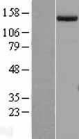NBL1-15871 - SETDB1 Lysate