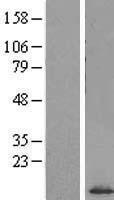 NBL1-15879 - SF3B5 Lysate