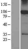 NBL1-15880 - SFMBT1 Lysate