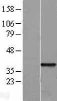 NBL1-15883 - SFRP1 Lysate
