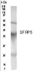 NB200-121 - SFRP5