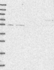 NBP1-87993 - SFRS12 / SREK1