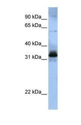 NBP1-57168 - SFRS2B / SRP46