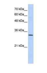 NBP1-59615 - Sideroflexin-1 (SFXN1)