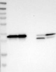 NBP1-83708 - Sideroflexin-1 (SFXN1)