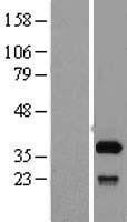 NBL1-15898 - SFXN1 Lysate