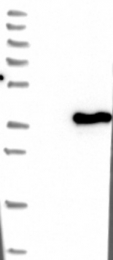 NBP1-85960 - Sideroflexin-2 (SFXN2)