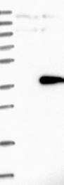 NBP1-86049 - Sideroflexin-2 (SFXN2)