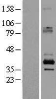 NBL1-15899 - SFXN2 Lysate