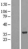 NBL1-15900 - SFXN3 Lysate