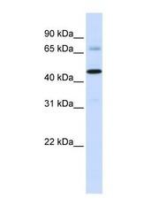NBP1-60073 - Sideroflexin-4 (SFXN4)