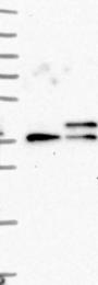 NBP1-86051 - Sideroflexin-4 (SFXN4)