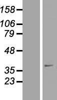NBL1-15901 - SFXN4 Lysate
