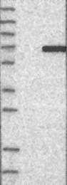NBP1-80760 - SGK3 / SGKL