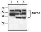 NBP1-45853 - SGLT2 / SLC5A2