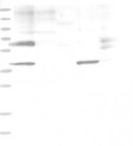 NBP1-83164 - Sulphamidase / SGSH