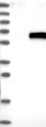 NBP1-83165 - Sulphamidase / SGSH