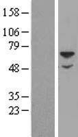 NBL1-15913 - SGSH Lysate