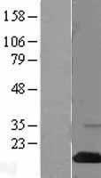 NBL1-15918 - SH2D1A / SAP Lysate