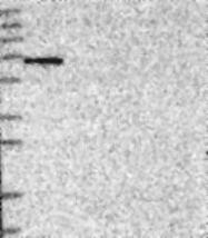 NBP1-82525 - SH2D3A