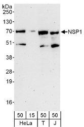 NBP1-78202 - SH2D3A