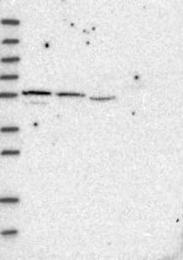 NBP1-85458 - SH3BP2
