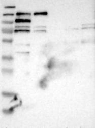 NBP1-84203 - SH3D19