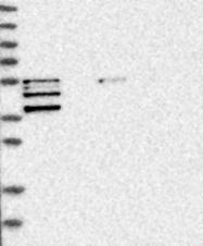 NBP1-85521 - Endophilin-A1
