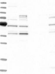 NBP1-81367 - Endophilin-B2