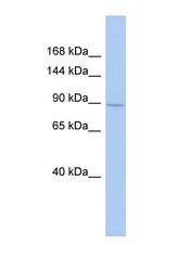 NBP1-54972 - SH3RF1 / RNF142