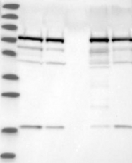 NBP1-80777 - Sorting nexin-9 (SNX9)