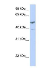 NBP1-62540 - ST3GAL1 / SIAT4