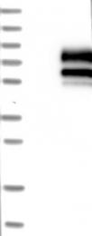 NBP1-86940 - SIGIRR / TIR8