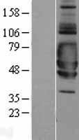 NBL1-15956 - SIGIRR Lysate