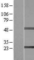 NBL1-15965 - SIKE1 Lysate