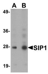 NBP1-77177 - SIP1 / GEMIN2