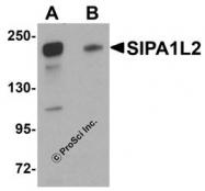 NBP1-77090 - SIPA1L2