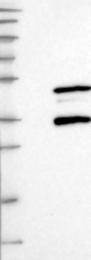 NBP1-87037 - SIRT3