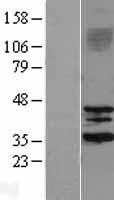 NBL1-15975 - SIRT3 Lysate
