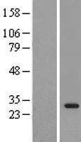 NBL1-15976 - SIRT3 Lysate
