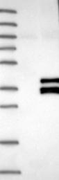 NBP1-80746 - SIRT4