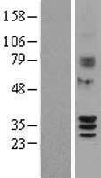 NBL1-15977 - SIRT4 Lysate