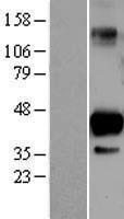 NBL1-15979 - SIRT6 Lysate