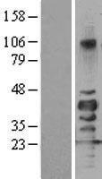 NBL1-15980 - SIRT7 Lysate