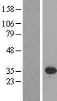 NBL1-15983 - SIX2 Lysate