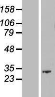 NBL1-08252 - SKA1 Lysate