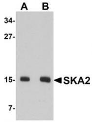 NBP1-76312 - SKA2