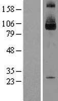 NBL1-15989 - SKI Lysate